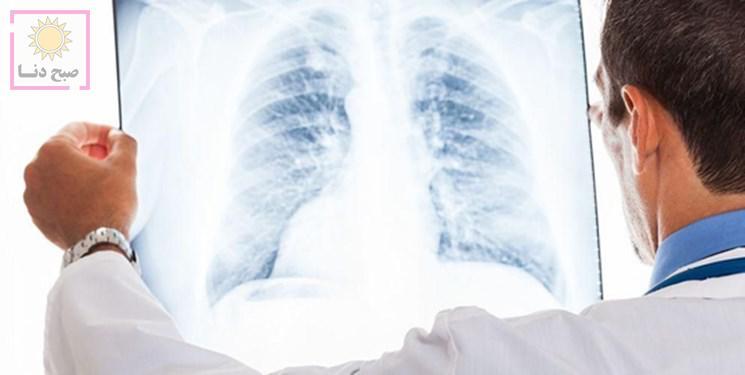 تفاوتهای «آنفلوانزا» و «کرونا» را بشناسید
